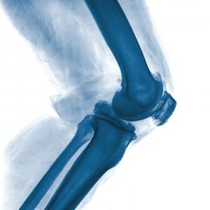 На фото яркий пример больного колена