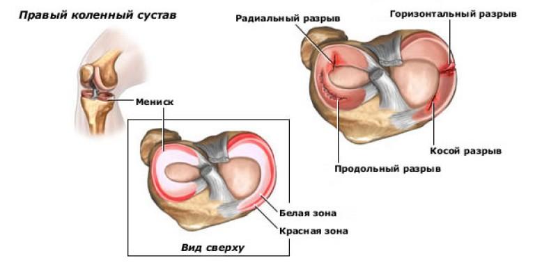 дегенеративные изменения менисков коленного сустава по stoller