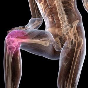 Деформирующий артроз коленного сустава лечение и профилактика