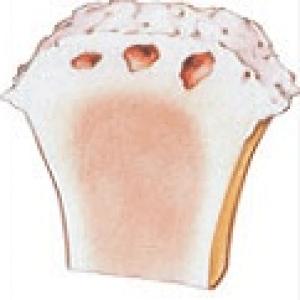 3 степень артроза коленного сустава