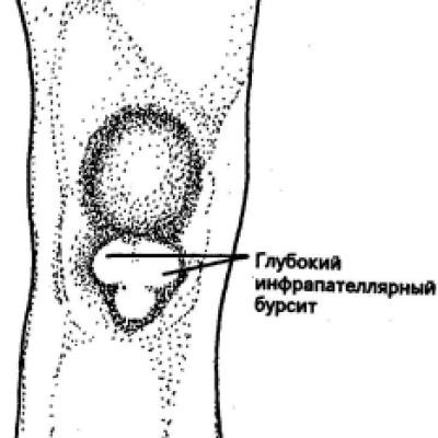 Стоимость операции на аденому простаты в москве