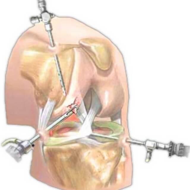 разрыв латерального мениска коленного сустава лечение без операции