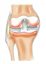 Крестообразная связка коленного сустава травмы лечение реабилитация