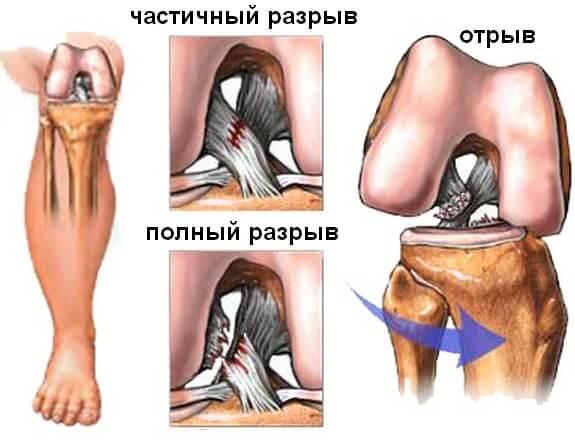 Реабилитация после надрыва связок коленного сустава в краснодаре рентген суставов у щенка норма