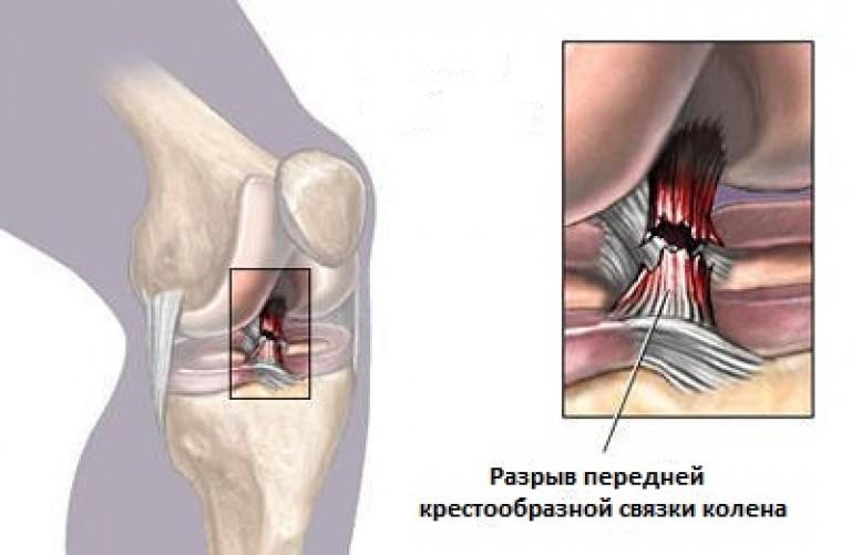 детралекс коленные суставы