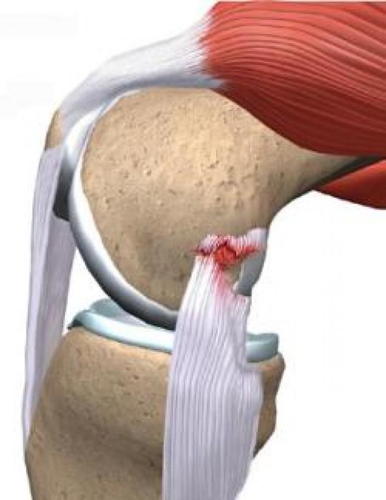 порваны связки коленного сустава признаки
