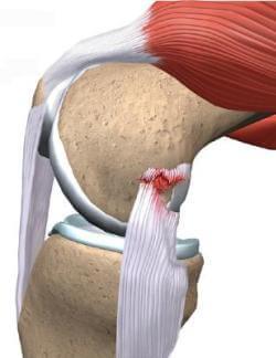 на фото разрыв связки коленного устава