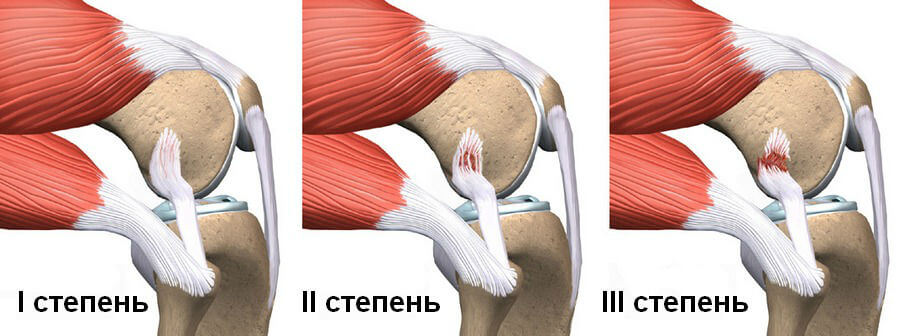ортез голеностопного сустава tan-2015