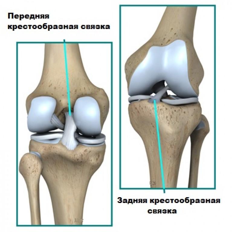 задняя нестабильность коленного сустава