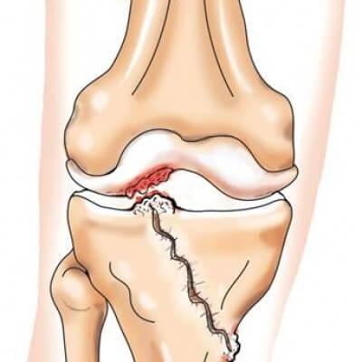 травматический гемартроз коленного сустава мкб 10