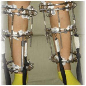пример лечения деформации колен