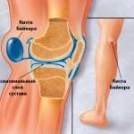Кисты бейкера коленного сустава лечение