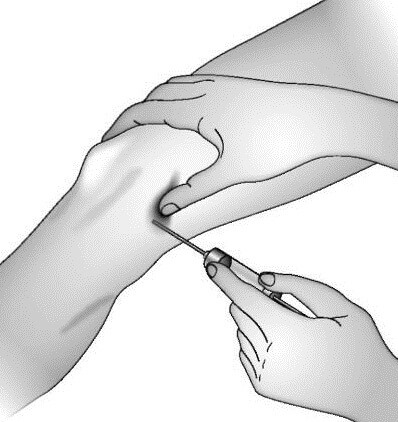 синяки на суставах пальцев