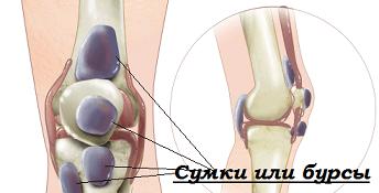 артроз коленного сустава артроз как пользоваться