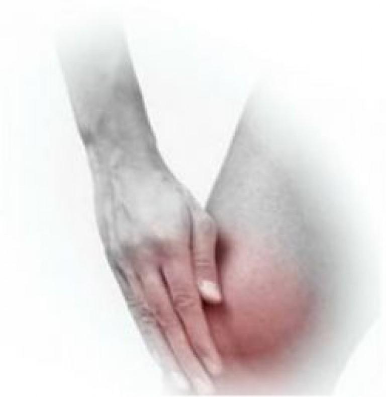 симптомы скопления жидкости в коленном суставе лечение