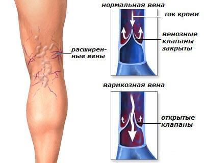 Ноющие боли в коленном суставе по ночам надпочечников увеличивается общая суставная гибкость уменьшается отложение ненужных солей