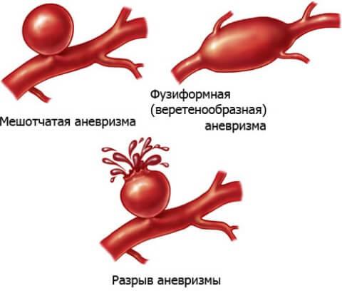 аневризма артерии