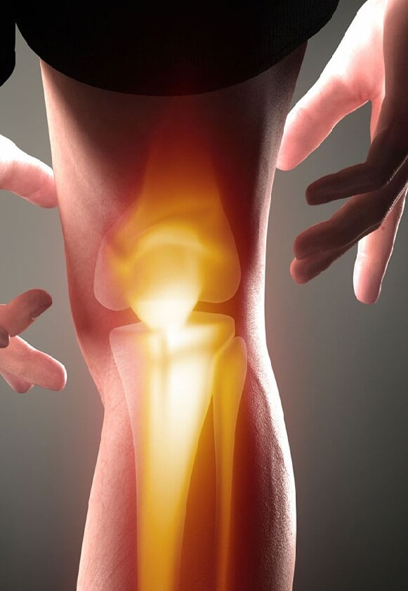 Средство от боли в коленном суставе больница где расширяют суставы