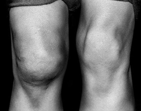 Почему отекают коленные суставы и как с этим бороться
