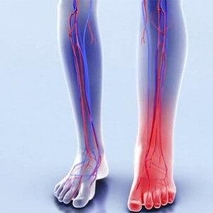 опухоль ноги