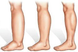 отек ноги