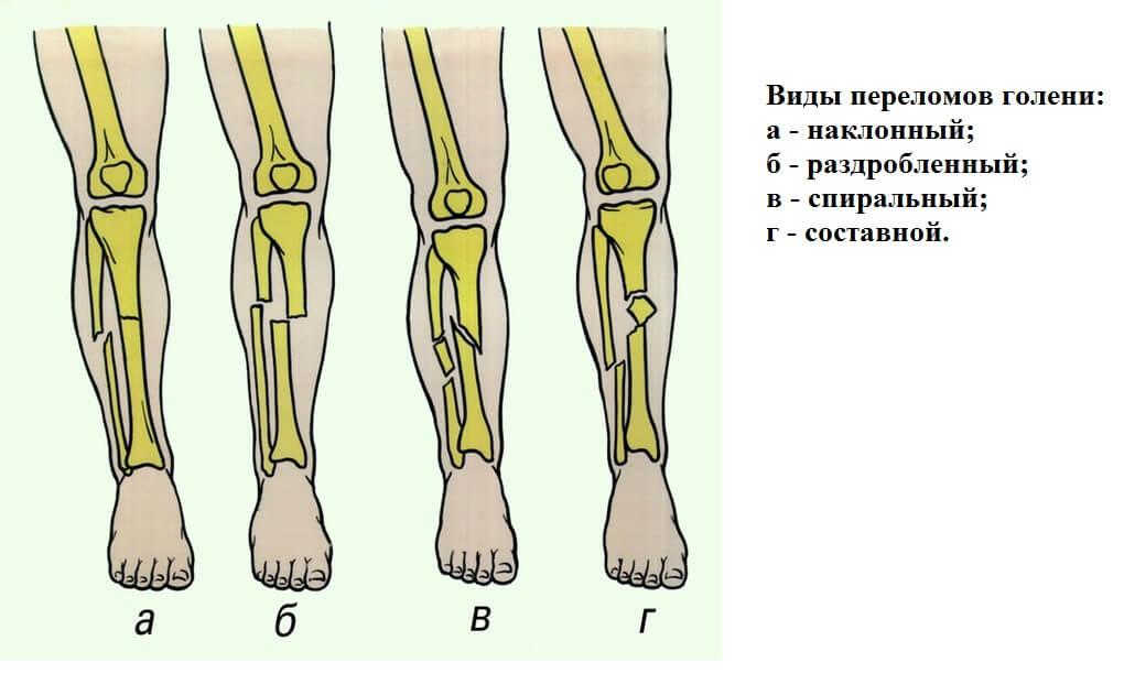 Какие состояния и болезни могут вызывать боль в колене