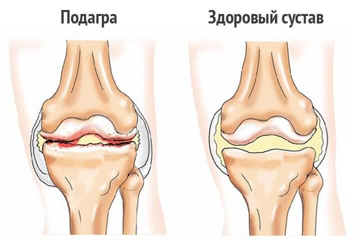 Почему опухло колено и болит Причины диагностика лечение