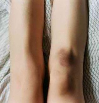 Кровь в коленном суставе причины инфекция в суставах лечение