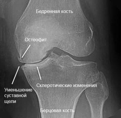 Склероз коленного сустава вывих сустава ноги средсва лечения