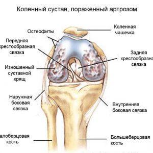 остеофиты колена