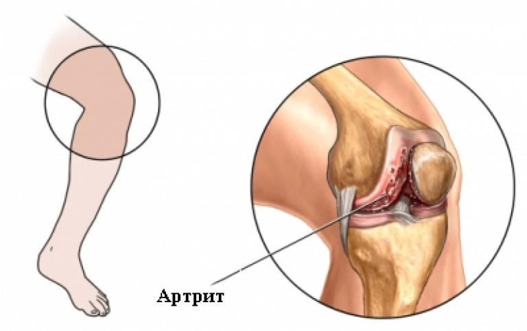 Коленный сустав лечение в домашних условиях при ушибе 217