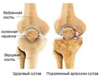 Скрипят суставы в коленях что делать