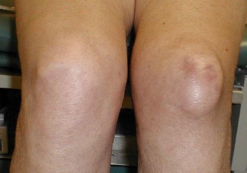 Грыжа в коленном суставе фото видео устранения боли коленных суставов