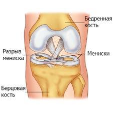 повреждение мениска