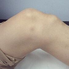 Опухло под коленом спереди болит некроз пястно фалангового сустава