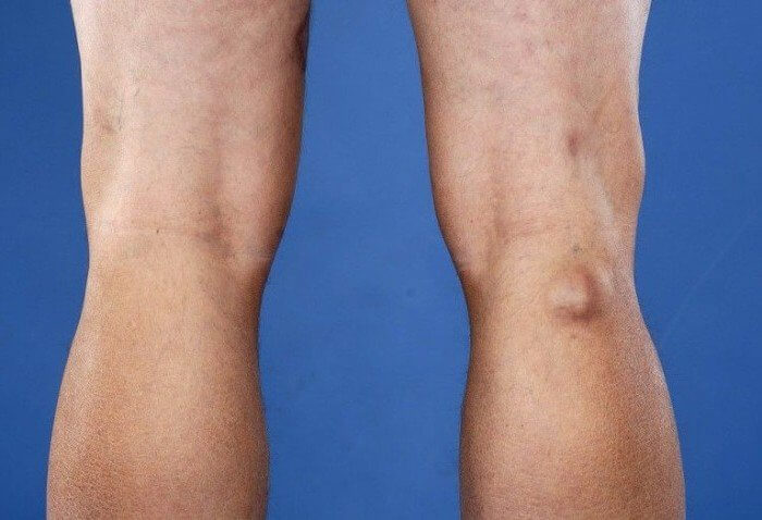 Опухоль под коленом не болит протез тазобедренного сустава ярославл