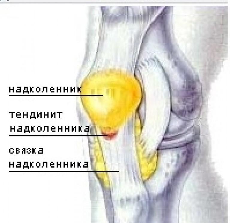 Воспаление связок коленного сустава лечение в домашних условиях
