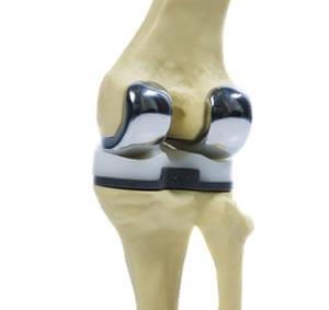 Протез зиммер для коленного сустава болит локоть после занятия спортом