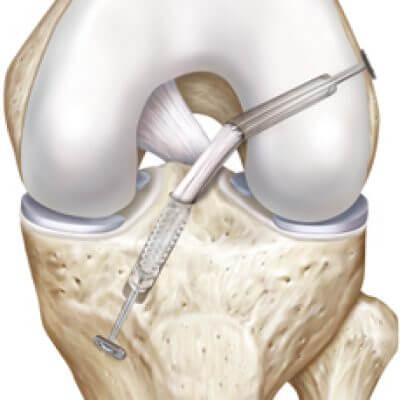 операция на коленный сустав крестообразная связка
