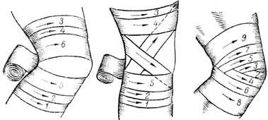 виды повязок на колено