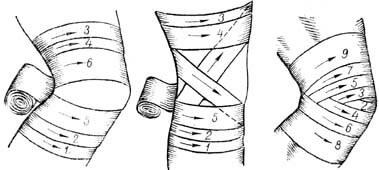повязки бинтом