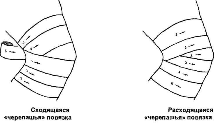 повязки