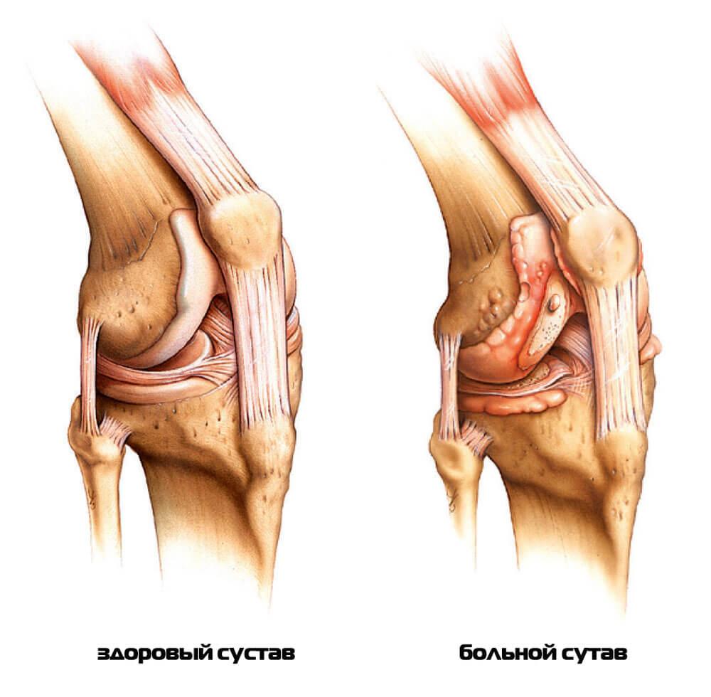 После блокады болит колено трихомонад несколько лет суставы