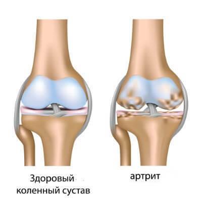 Как укрепить связки коленного сустава видео артроз тазобедренного сустава эндопротез