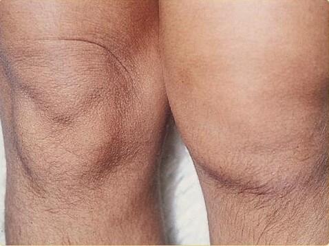 припухлость колена