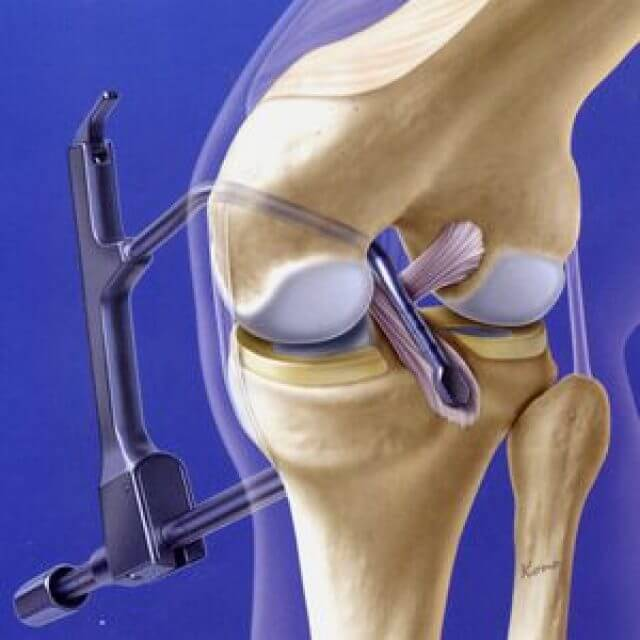 срастаются ли связки коленного сустава при разрыве