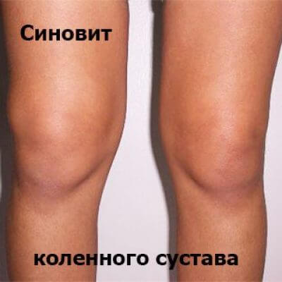 что такое синовит при заболевании суставов