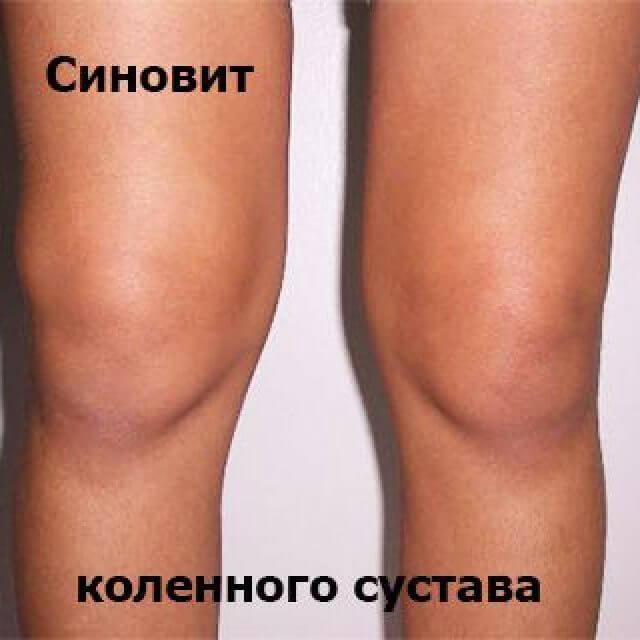 У меня в коленном суставе синовит как лечить