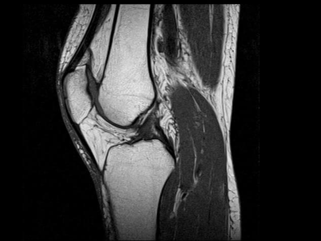 фиброматоз локтевого сустава