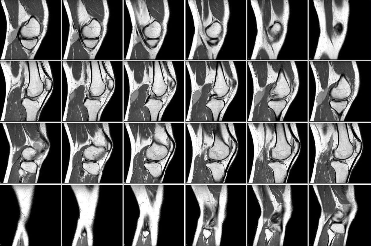 томография колена